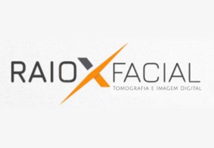 RAIO X FACIAL